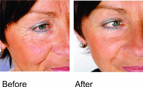Trophy Skin RejuvaliteMD Before/After