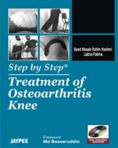 Treatment of Osteoarthritis Knee (Step by Step)