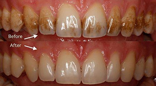 oral hygiene instruction manual