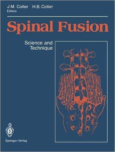 Descargar Torrents En Ingles Spinal Fusion: Science And Technique Libro Epub