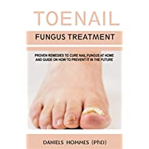 TOENAIL FUNGUS TREATMENT: Proven Remedies To Cure Nail Fungus  At Home And Guide On How To Prevent It In The Future