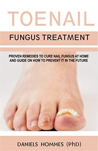 TOENAIL FUNGUS TREATMENT: Proven Remedies To Cure Nail Fungus At ...