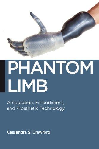 Phantom Limb: Amputation, Embodiment, and Prosthetic Technology (Biopolitics)