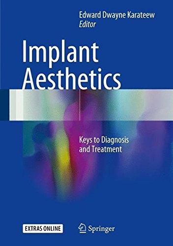 Implant Aesthetics: Keys to Diagnosis and Treatment