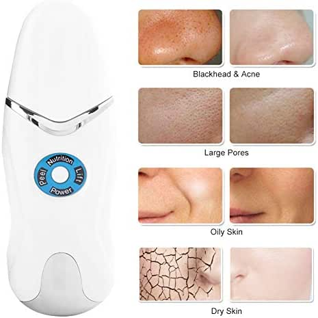 Face Skin Cleaning Scrubber - High Frequency Facial Machine with Deep Skin Cleaning/Ions Nutrition Lead-in/Face Line Lifting Mode for Pores Acne Removal and Fine Wrinkles Lighten