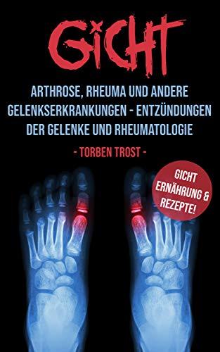 Arthrose, Arthritis, Rheuma und Gicht im Vergleich