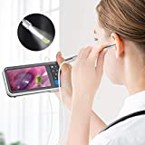 Digital Otoscope with 4.5 Inches Screen, Anykit