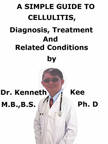 A  Simple  Guide  To  Cellulitis,  Diagnosis, Treatment  And  Related Conditions (A Simple Guide to Medical Conditions)