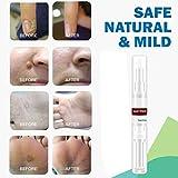 Skin Tag Remover Natural Health Wart & Mole