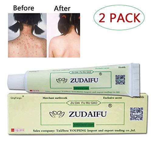 GARYOB 2PACK Antibacterial Ointment Creams CEZUBEM Psoriasis Eczema Peeling ZUDAIFU Herbal Creams