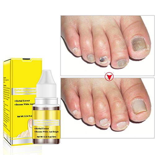 Amazon.com : OEDO Nail Treatment Essence Oil Herbal Ginseng ...