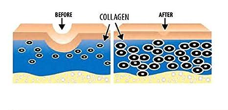 Enriquecido con vitaminas antioxidantes A, C, D y E para el rejuvenecimiento y la hidratación de las células de la piel (libre de trigo y gluten) 2 ...