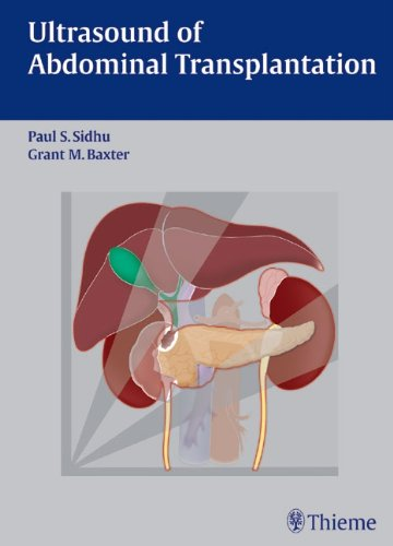 Ultrasound of Abdominal Transplantation