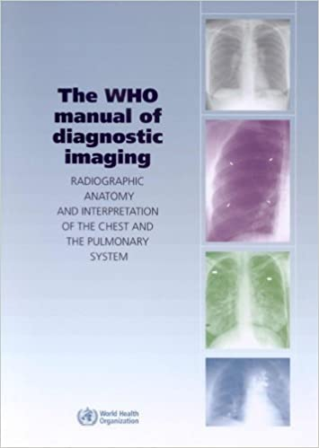 Book The WHO Manual of Diagnostic Imaging: Radiographic Anatomy and Interpretation of the Chest by S.M. Ellis (2006-08-01)
