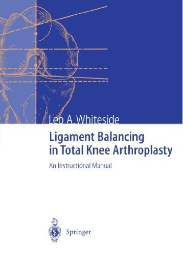(Ligament Balancing in Total Knee Arthroplasty: An Instructional Manual by Leo A. Whiteside (2011-09-15))