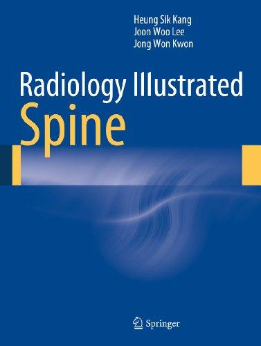 Radiology Illustrated: Spine Pdf