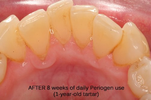 Periogen Rinse for Complete Oral Health: the only Product in the World that Removes Dental Tartar Buildup that is the Cause of Gum Disease, Award Winning Results on Two Continents! by Periogen (Image #8)'