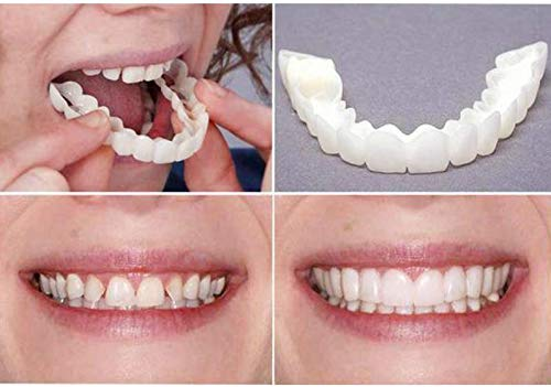 Snap On Smile - Instant Perfect Smile Clip On Veneers (Work for Top Or Bottom) - Perfect Braces and Whitening Alternative No Pain No Shots No Drilling - Perfect Smile in Minutes