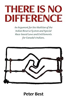 There Is No Difference: An Argument for the Abolition  of the Indian Reserve System and Special Race-based Laws and Entitlements for Canada's Indians. by [Best, Peter]