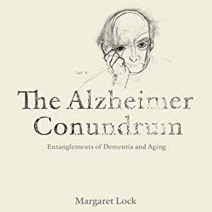 The Alzheimer Conundrum Audiobook
