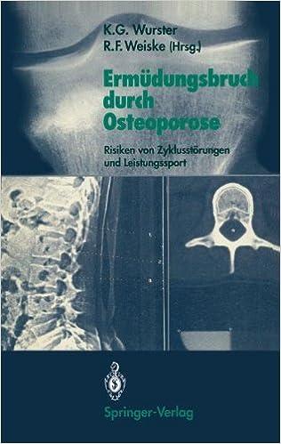 Ermüdungsbruch durch Osteoporose: Risiken von Zyklusstörungen und Leistungssport (German Edition)