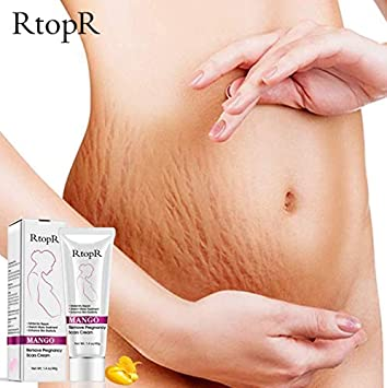 Buy Sbrmart Natural Mild Non Irritating Mango Stretch Mark Cream