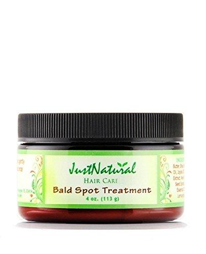 Bald-Spot-Treatment-Scalp-Spot-Care