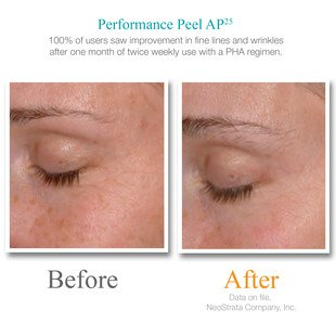 Exuviance Performance Peel AP25, 12 Count by Exuviance (Image #2)