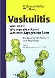 Vaskulitis : Was Ist Sie - Wie Man Sie Erkennt - Was Man Dagegen Tun Kann, Gross, Wolfgang L., 3798514747