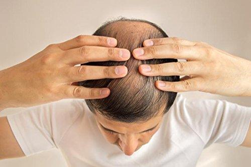Hair Growth Men Pills - DHT Blocker - Premium Hair Complex - for Men and Women - Saw Palmetto Men Hair Loss - 3 Bottles 180 Tablets