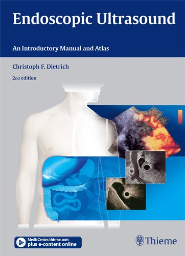 Endoscopic Ultrasound: An Introductory Manual and Atlas Pdf