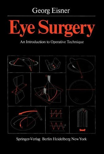 LOCAL ANESTHESIA IN EYE SURGERY