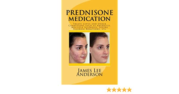 Purchasing prednisone with next day delivery