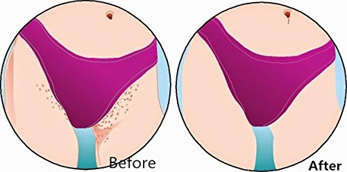 Bikini Line Shaving Bumps