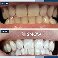 Kit Snow Teeth Whitening  Features Hidden