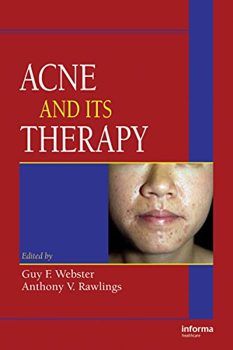(Acne and Its Therapy (Basic and Clinical Dermatology Book 40))