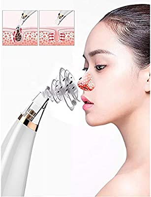 Zhongsufei-fc Aspirador de poros Acne Cleanser Electric Facial ...