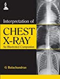 Interpretation of Chest X-Ray: An Illustrated