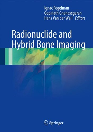 Radionuclide and Hybrid Bone Imaging