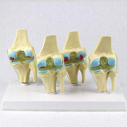 LXX Human Joint Anatomical Model- Four Stage Pathological Knee Joint Model - PVC Material Medical Teaching Model -for Medical Educational Training Aid