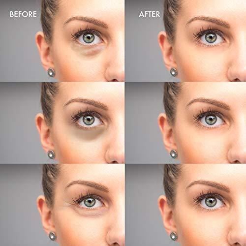 Aloe Vera Eye Mask Reduce Puffy Eyes, Under Eye Bags