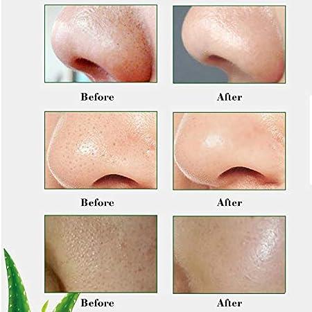 Mascarilla para espinillas, puntos negros, exfoliante de aloe vera, antienvejecimiento, para el acné, 100 g