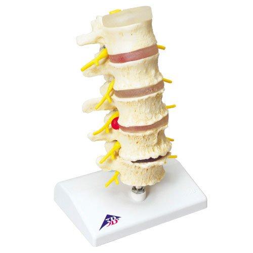【海外 正規品】 椎間板ヘルニアと変形性脊椎症モデル A795 (11-2825-00)【京都科学 A795】[1台単位] B01KDPKDAS B01KDPKDAS, きもの夢あわせ:f5a6d8e5 --- a0267596.xsph.ru