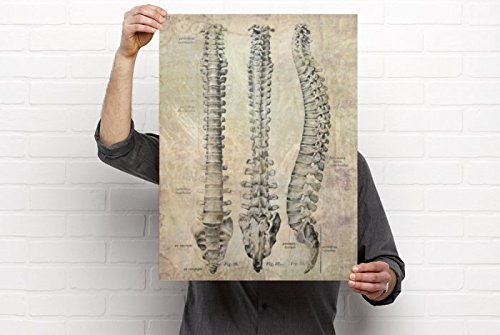 - Clinic Artwork Chiropractic Anatomy Artwork - 3 View Spine, 18'x24' Poster, Chiropractic Art, Clinic Decor