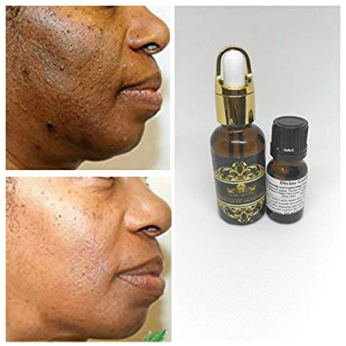 (1 oz / 30 ml) Lactic Acid Peel 88% -Chemical Peel-Unbuffered-Alpha Hydroxy (AHA) For Acne, Oily Skin, Wrinkles, Blackheads, Large Pores,Skin Lightening & Free After Peel Lightening & Brightening Oil