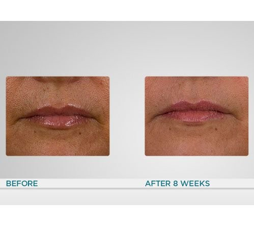 Conture Anti-Aging Skin Toning System for Face & Neck If Sold Separately: $371.00 by Conture (Image #3)