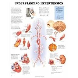 AWW 9781587794223 Understanding Hypertension 20 in. x 26 in. 1.5