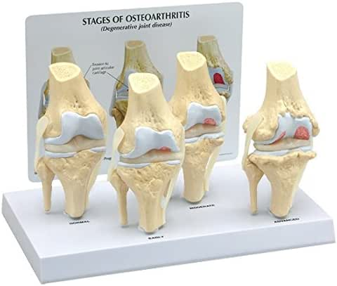 4-stage Anatomical Human Osteoarthritis Knee Model Set