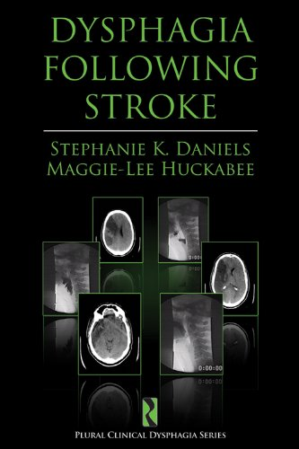 Dysphagia Following Stroke (Plural Clinical Dysphagia Series)