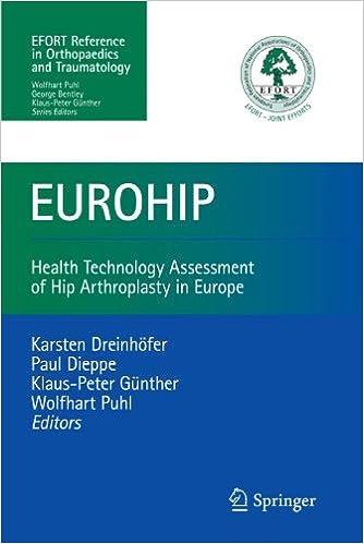 Book Eurohip: Health Technology Assessment of Hip Arthroplasty in Europe by Karsten Dreinhofer (2010-02-06)